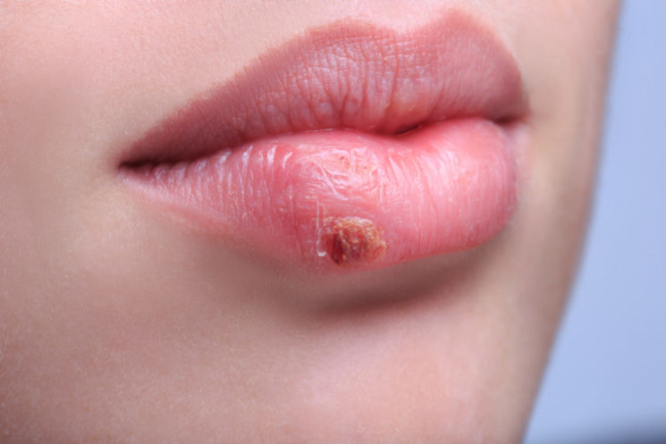 close up. beautiful lips virus infected herpes