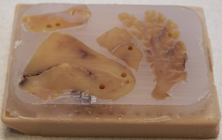 This is a paraffin embedded human brain block. This method is used to store brain tissue and is easy to cut thin sections from, in order to stain and identify different molecules of interest.