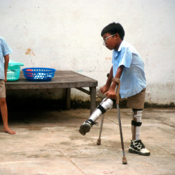 A5603Y Painet ix1852 5484 cambodia health amputee children school pnom penh lost limbs landmines country developing nation less